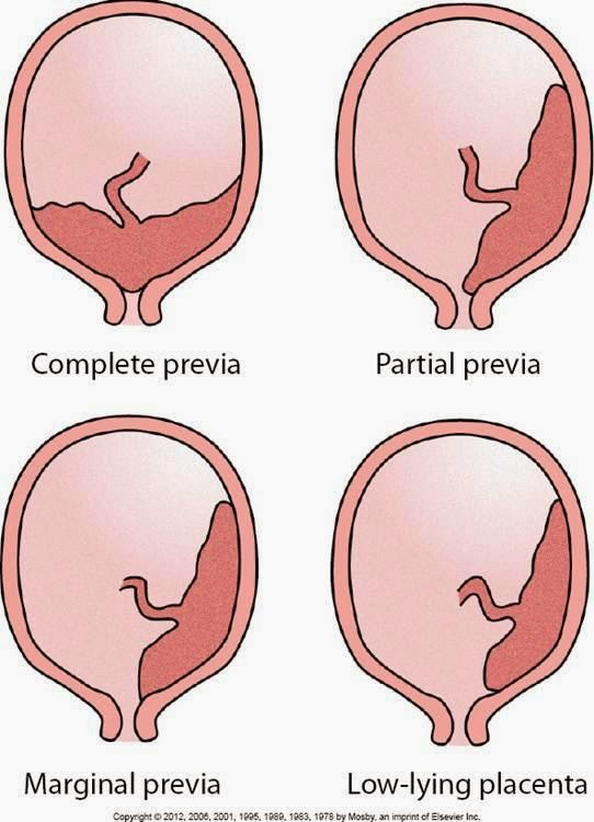 placenta previa Placenta abrupto and placenta previa are the two most common causes of third trimester bleeding in placenta previa, the placenta is implanted over internal cervical os classified as.